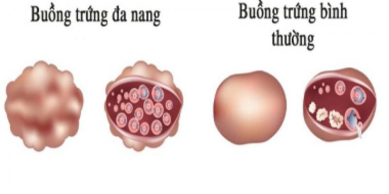 6-luu-y-quan-trong-can-biet-ve-hoi-chung-buong-trung-da-nang