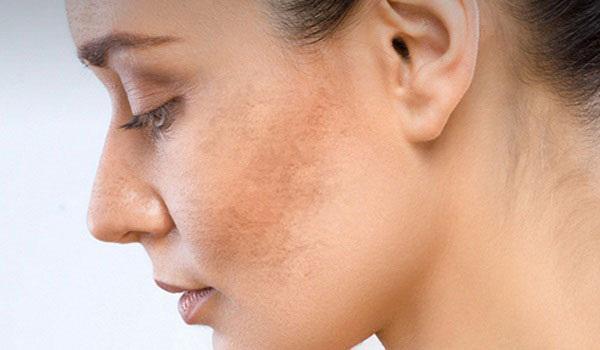Khi nám đã xuất hiện trên bề mặt da, cần đến bác sĩ để có phác đồ điều trị phù hợp