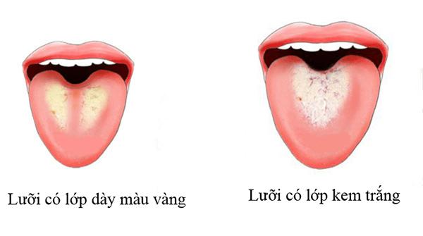nhung-trieu-chung-bao-hieu-co-the-ban-dang-chua-nhieu-doc-to-luoi-mau-vang-trang